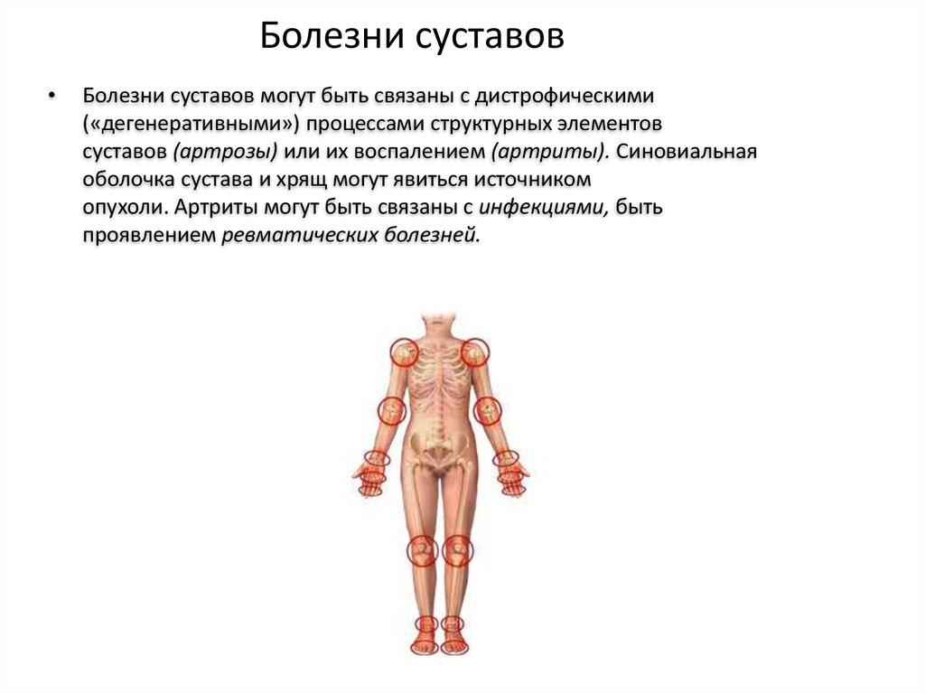 Болезни костно-суставной системы у подростков суставы таза при беременности