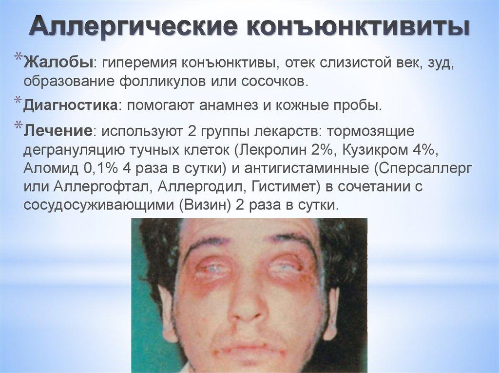 Аллергическом коньюктивит