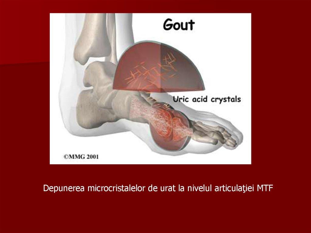 cum să înlăturați durerea cu artroza articulației șoldului artroza a 2 articulații mici