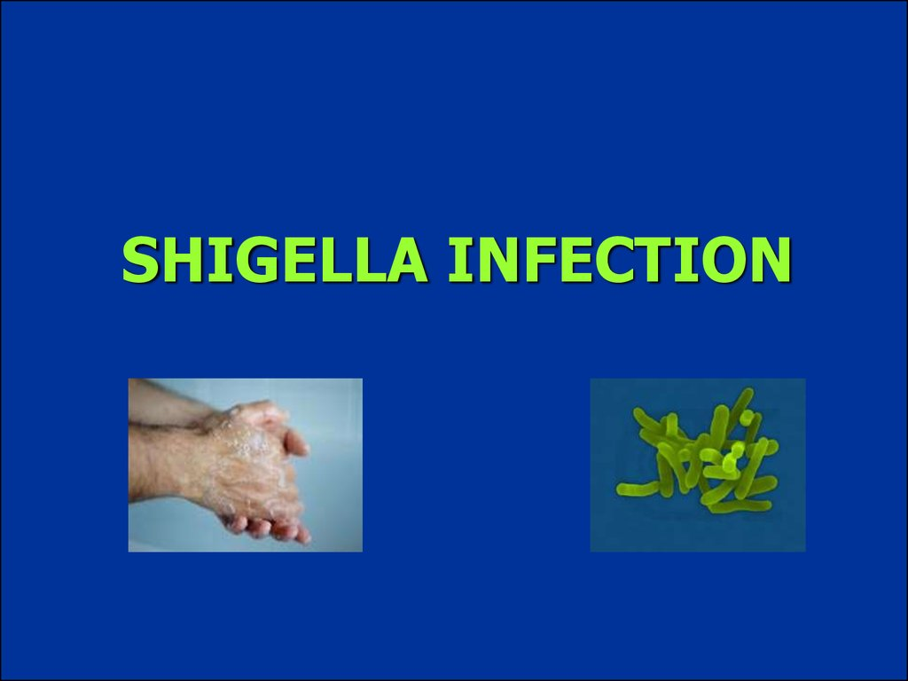 SHIGELLA INFECTION
