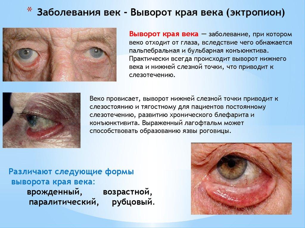 Реферат заболевание глазного века.медицина прай - лист на медицинское оборудование
