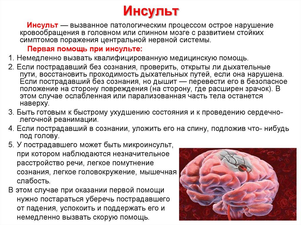 Характер головокружения при инсульте