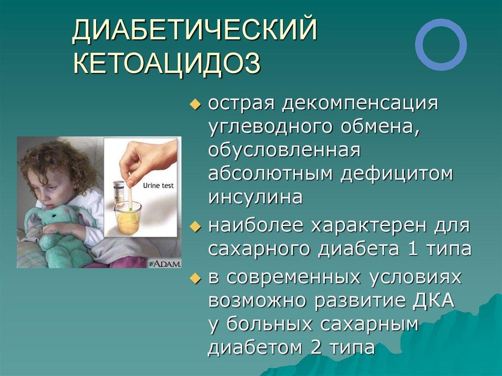 Сахарный диабет с кетоацидозом код