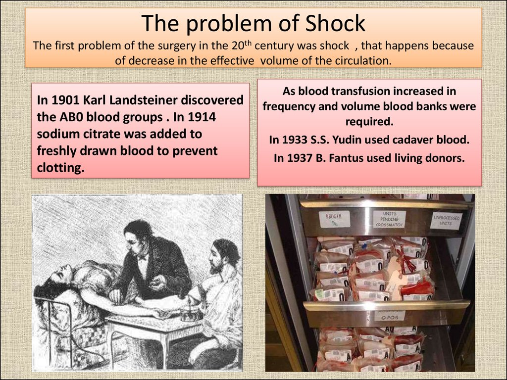 The problem of Shock The first problem of the surgery in the 20th century was shock , that happens because of decrease in the effective volume of the circulation.