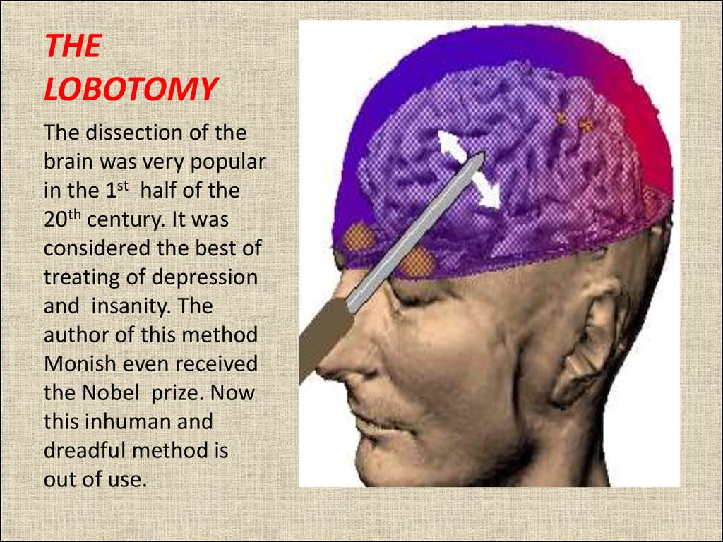 THE LOBOTOMY