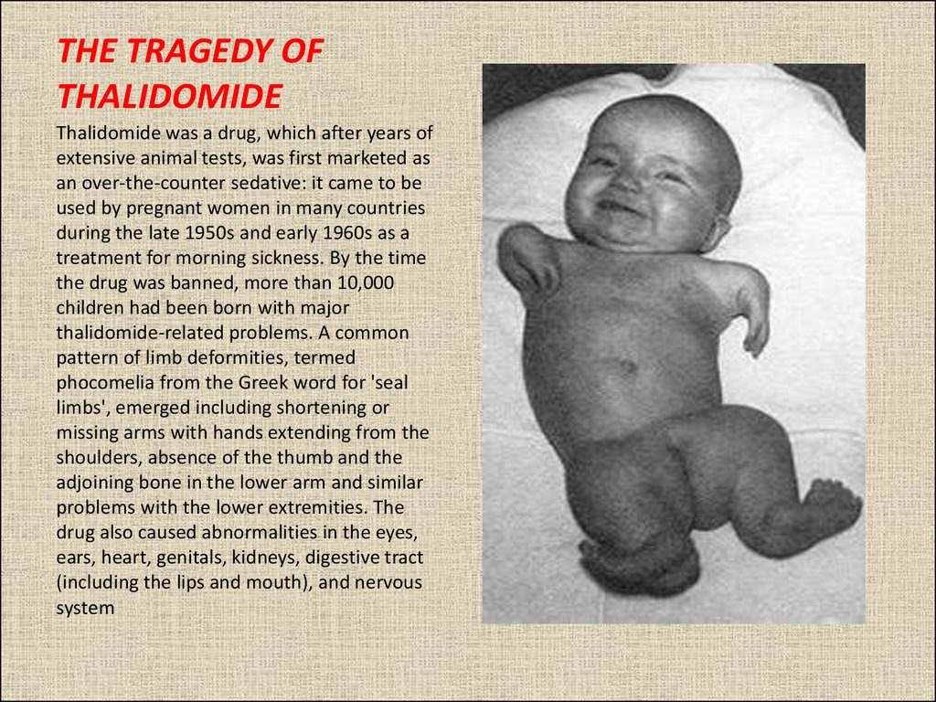 THE TRAGEDY OF THALIDOMIDE