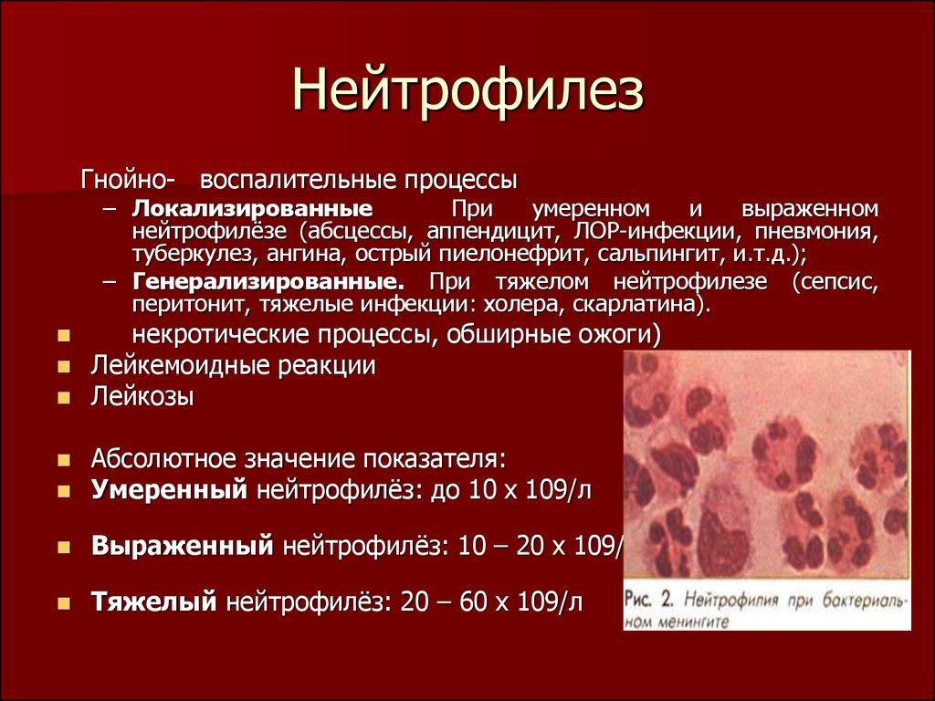 Нейтрофилез в ликворе после эпиприпадка