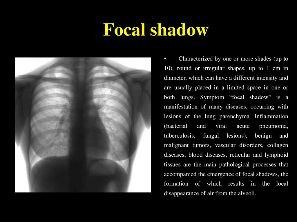 Focal shadow