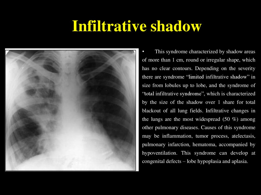 Infiltrative shadow