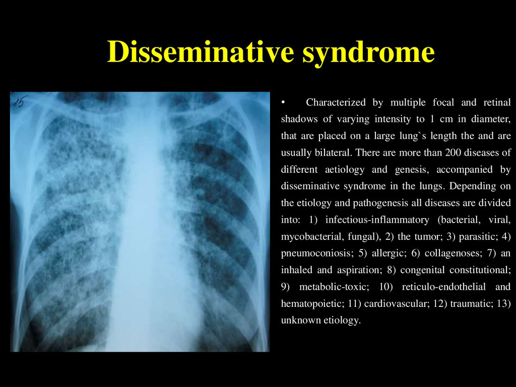 Disseminative syndrome