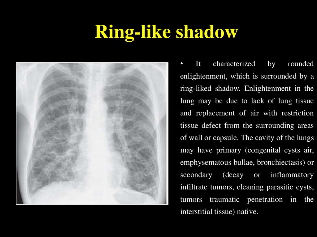 Ring-like shadow
