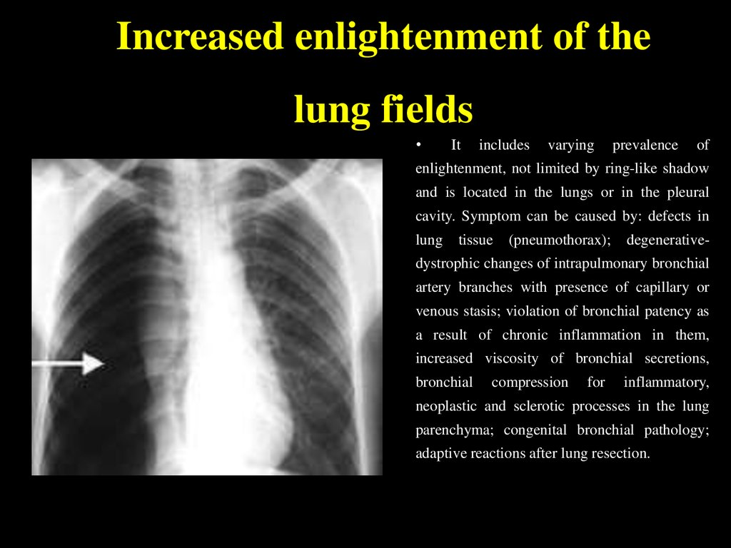 Increased enlightenment of the lung fields