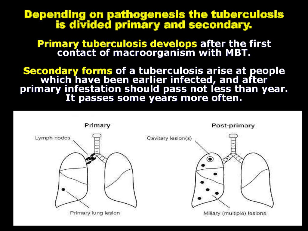 Depending on pathogenesis the tuberculosis is divided primary and secondary. Primary tuberculosis develops after the first contact of macroorganism with MBT. Secondary forms of a tuberculosis arise at people which have been earlier infected, and after pri
