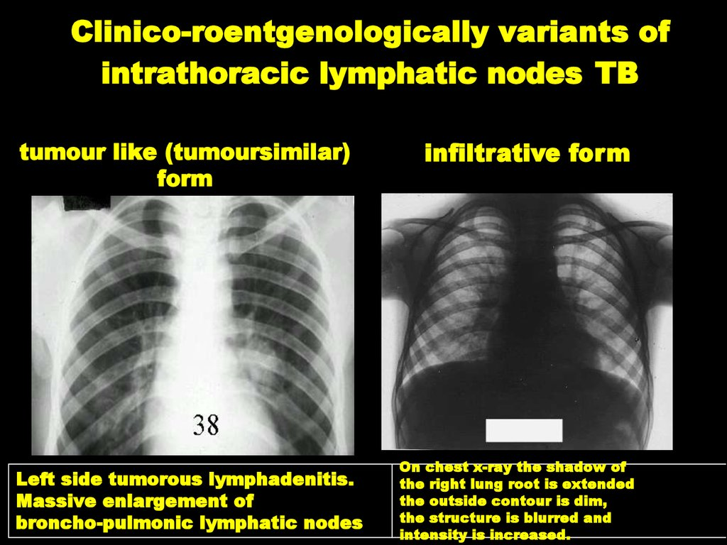 Clinico-roentgenologically variants of intrathoracic lymphatic nodes TB