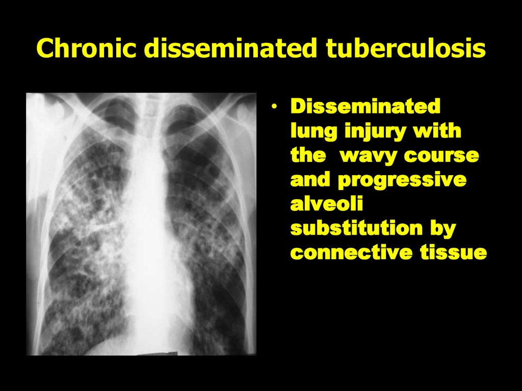 Chronic disseminated tuberculosis