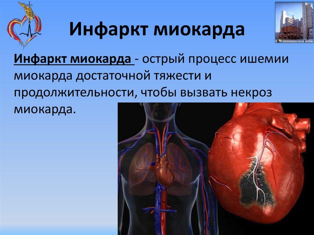 Алкоголизм при инфаркте миокарда