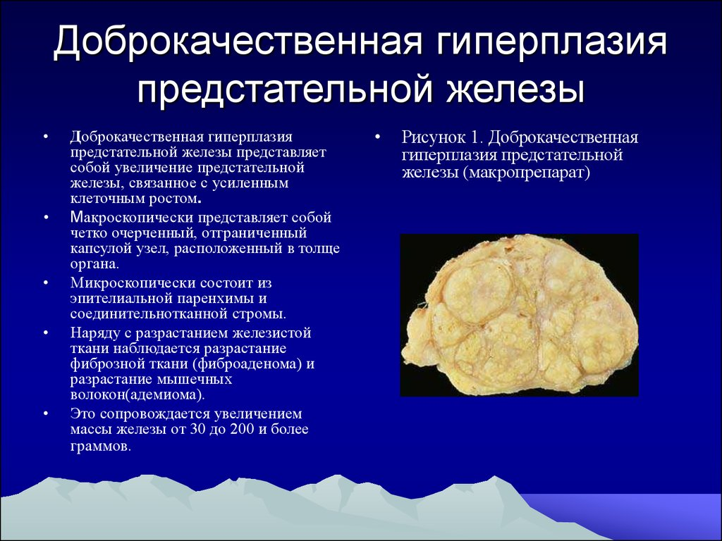 гиперплазия простатиты