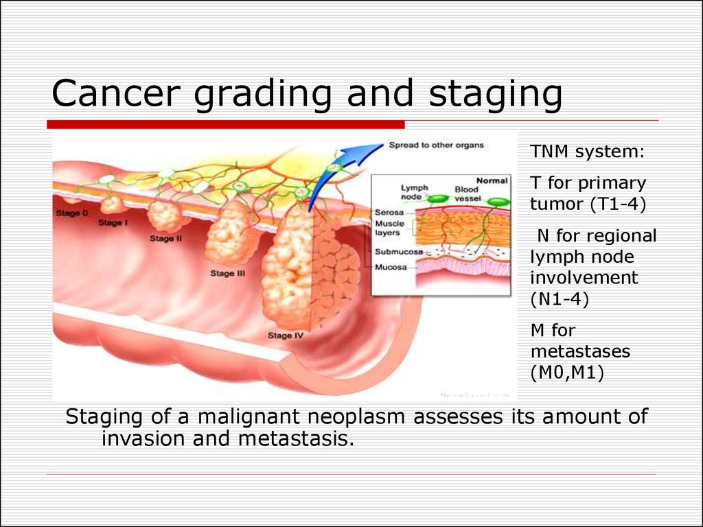 Cancer grading and staging