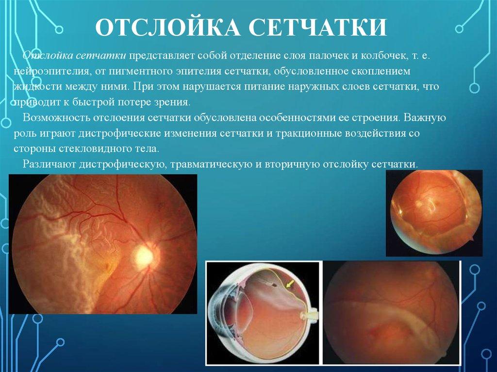 Отслойка сетчатки глаза операция отзывы