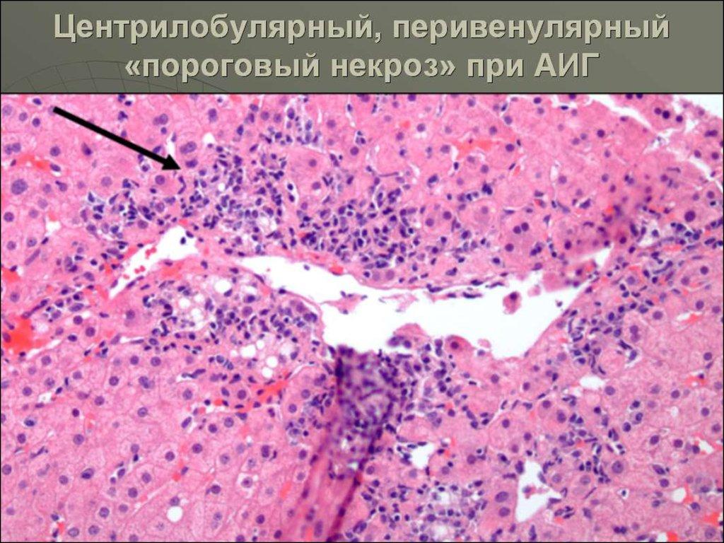 Liver Failure Necrosis