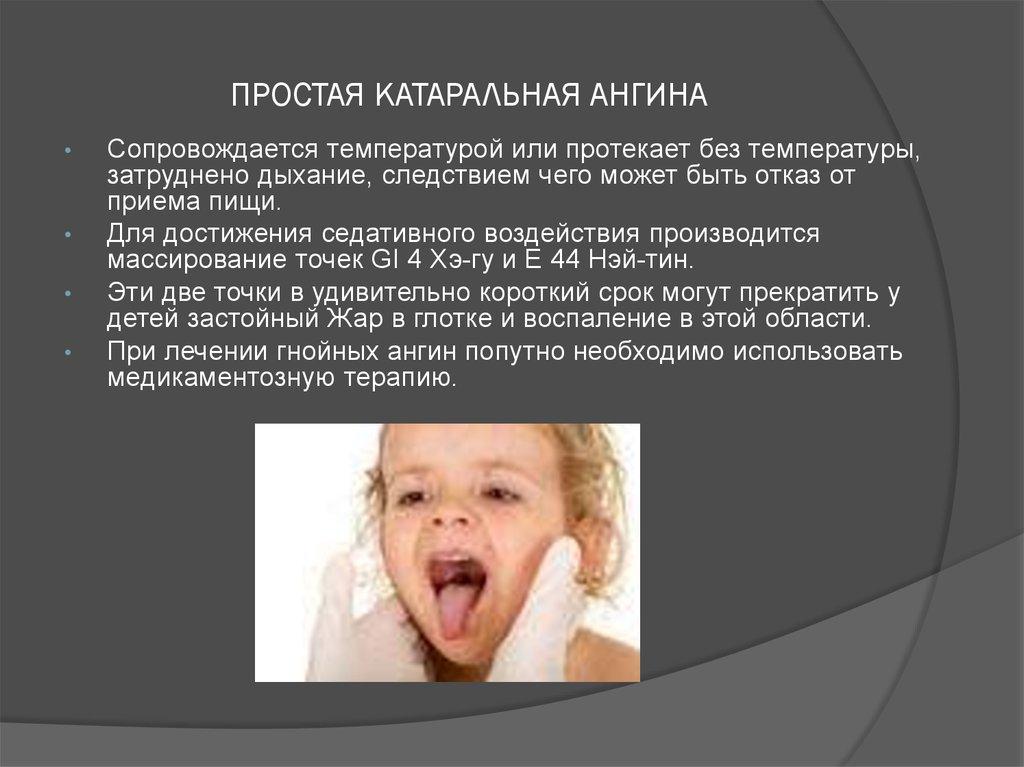Тонзиллит без температуры симптомы