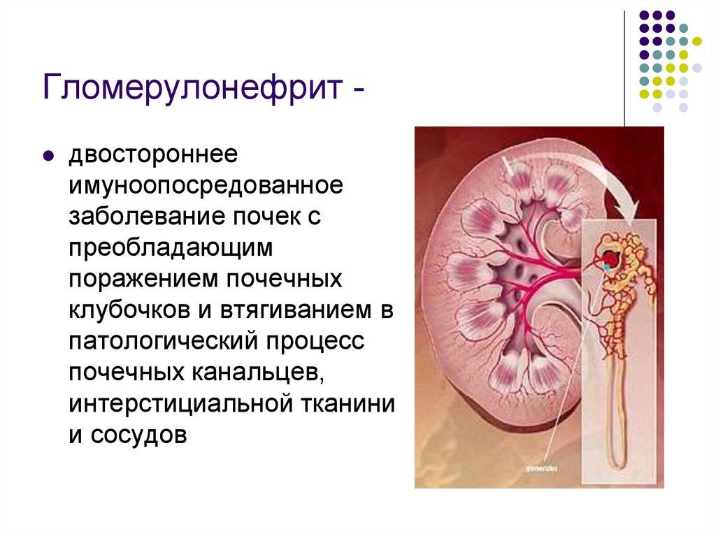 Что такое гломерулонефрит у взрослых