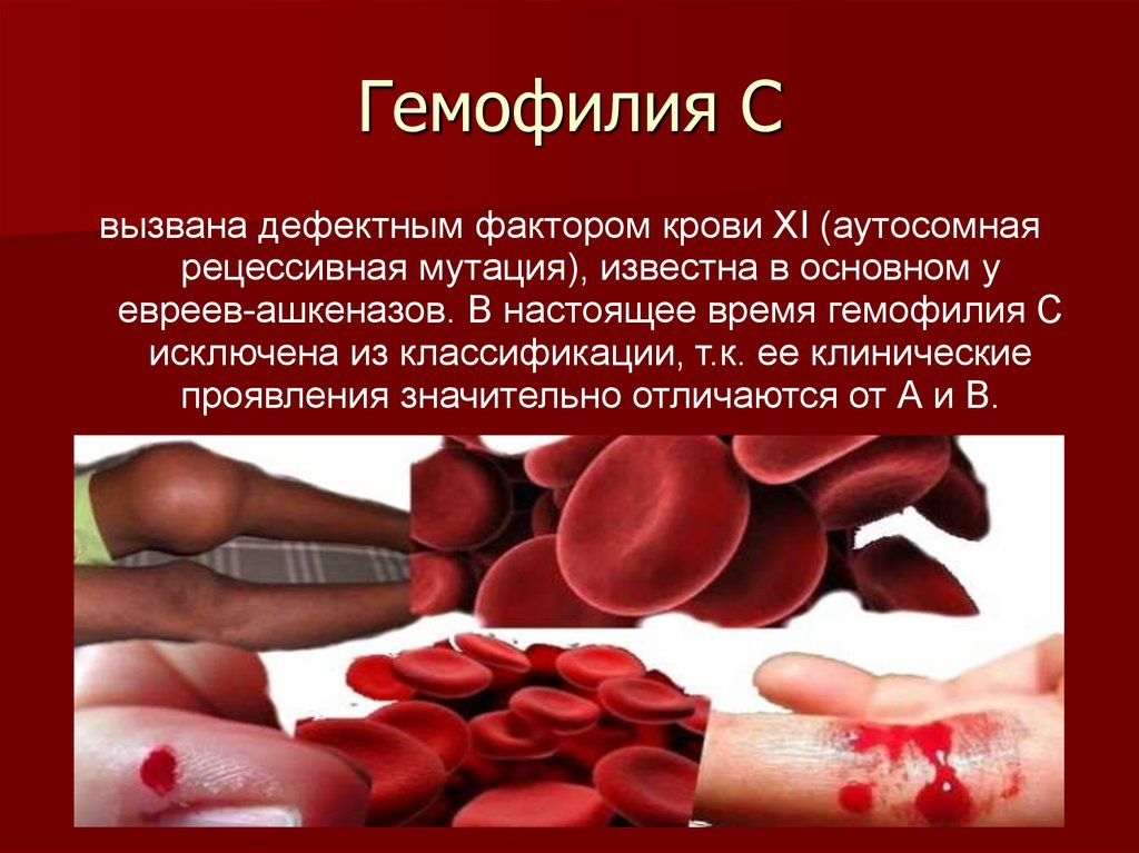 hemophilia b Hemophilia b is a bleeding disorder that slows the blood clotting process people with this disorder experience prolonged bleeding or oozing following an injury or surgery.