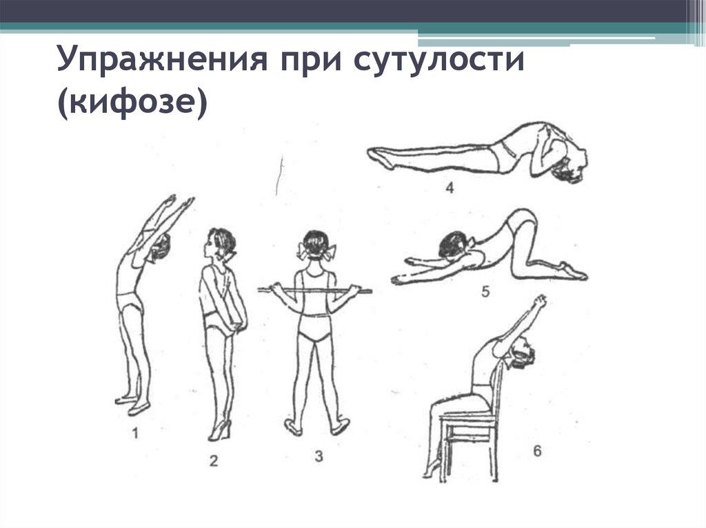 Упражнения для детей при сутулости в картинках