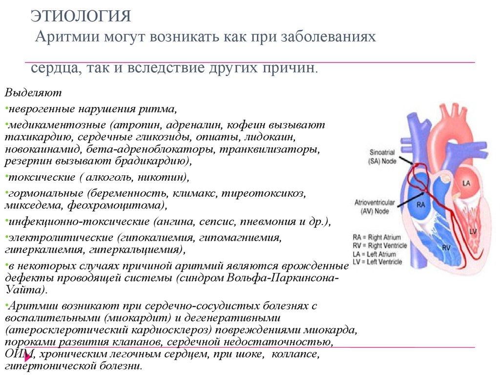 Почему происходит аритмия сердца