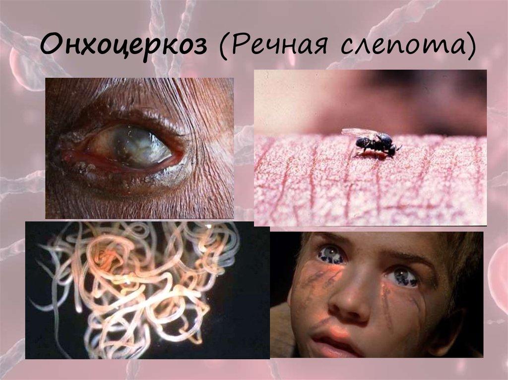 паразиты живущие внутри людей