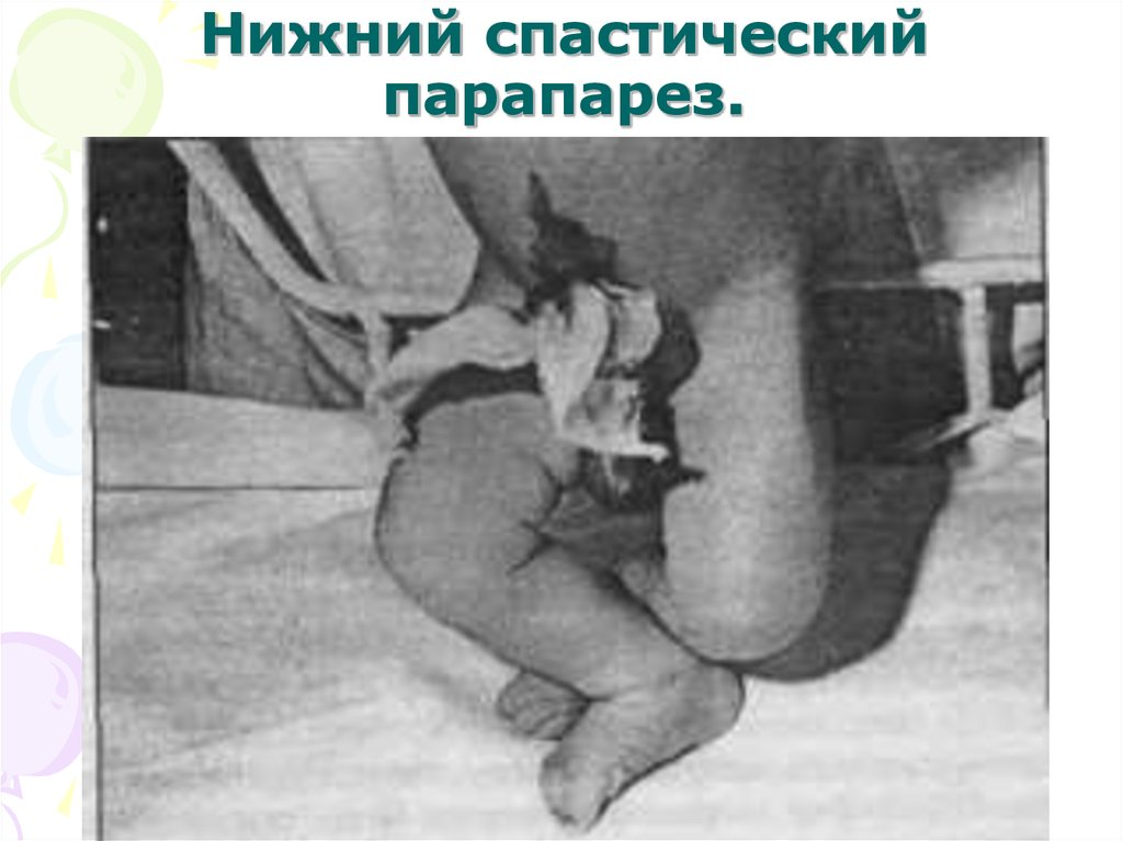 Нижний спастический парапарез у ребенка