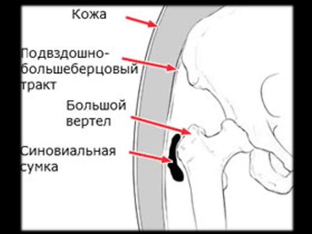 Подвздошно гребешковый бурсит тазобедренного сустава