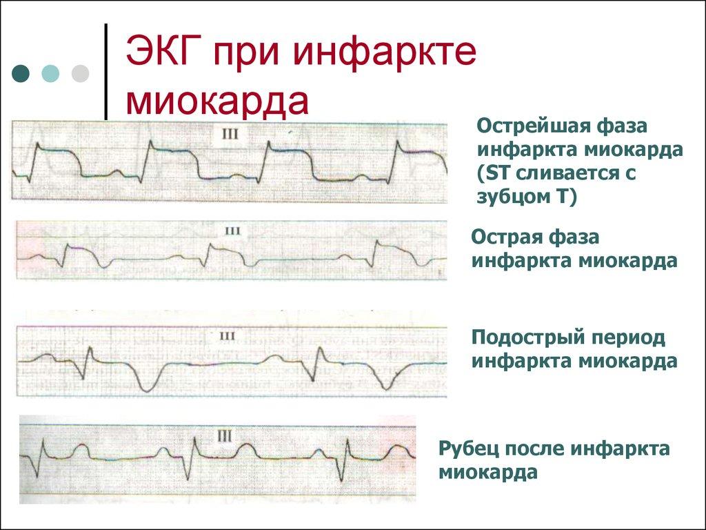 экг при инфаркте миокарда картинки короткие стрижки