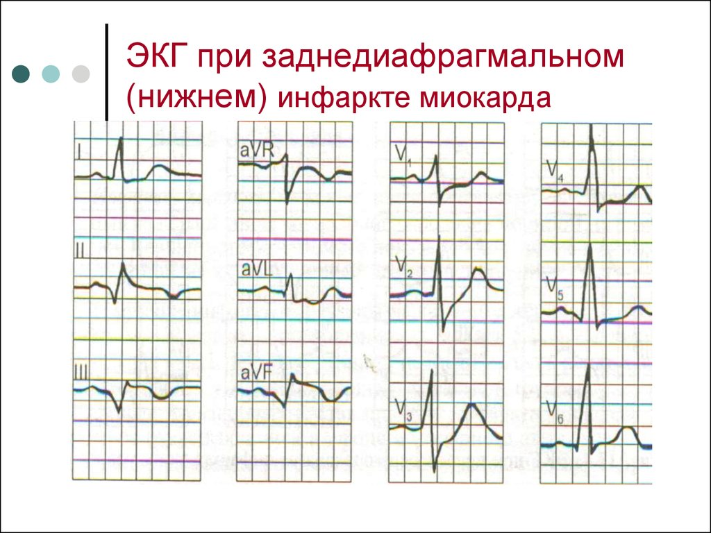 экг при инфаркте миокарда картинки часть здания