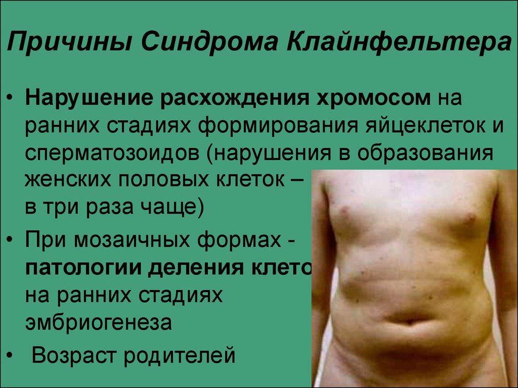 синдром клайнфельтера симптомы признаки способа