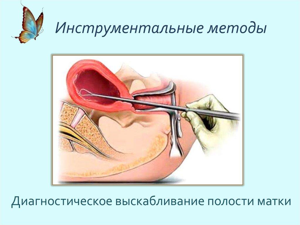 пациенткикартинки и схемы гинекологический осмотр положение