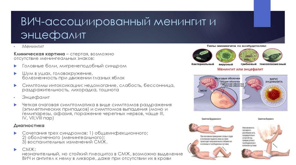 Симптомы менингита энцефалита