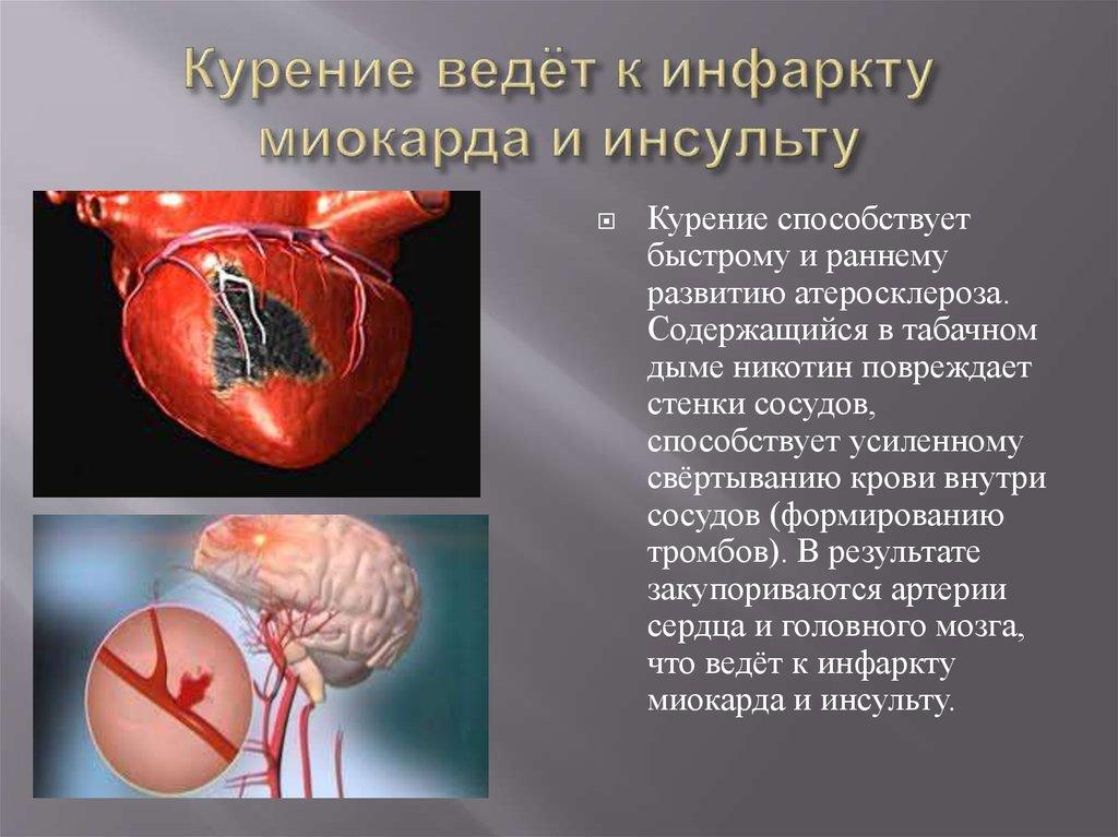 Обширный инфаркт шунтирование