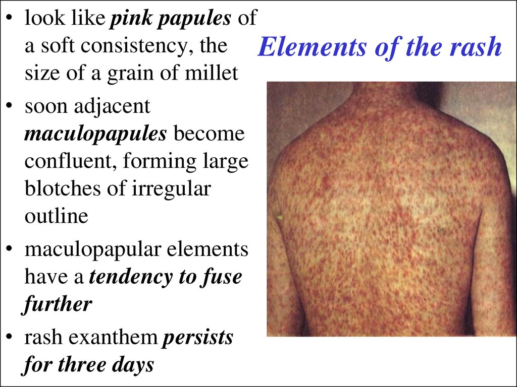 Elements of the rash