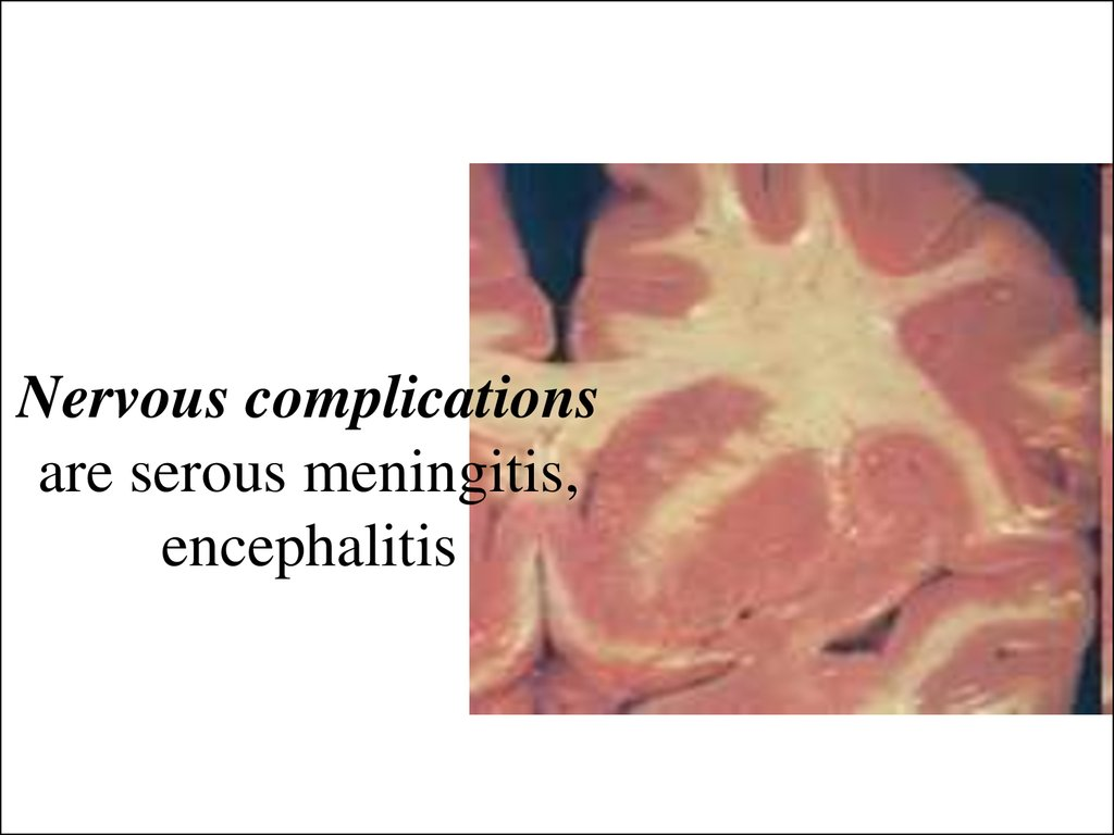 Nervous complications are serous meningitis, encephalitis