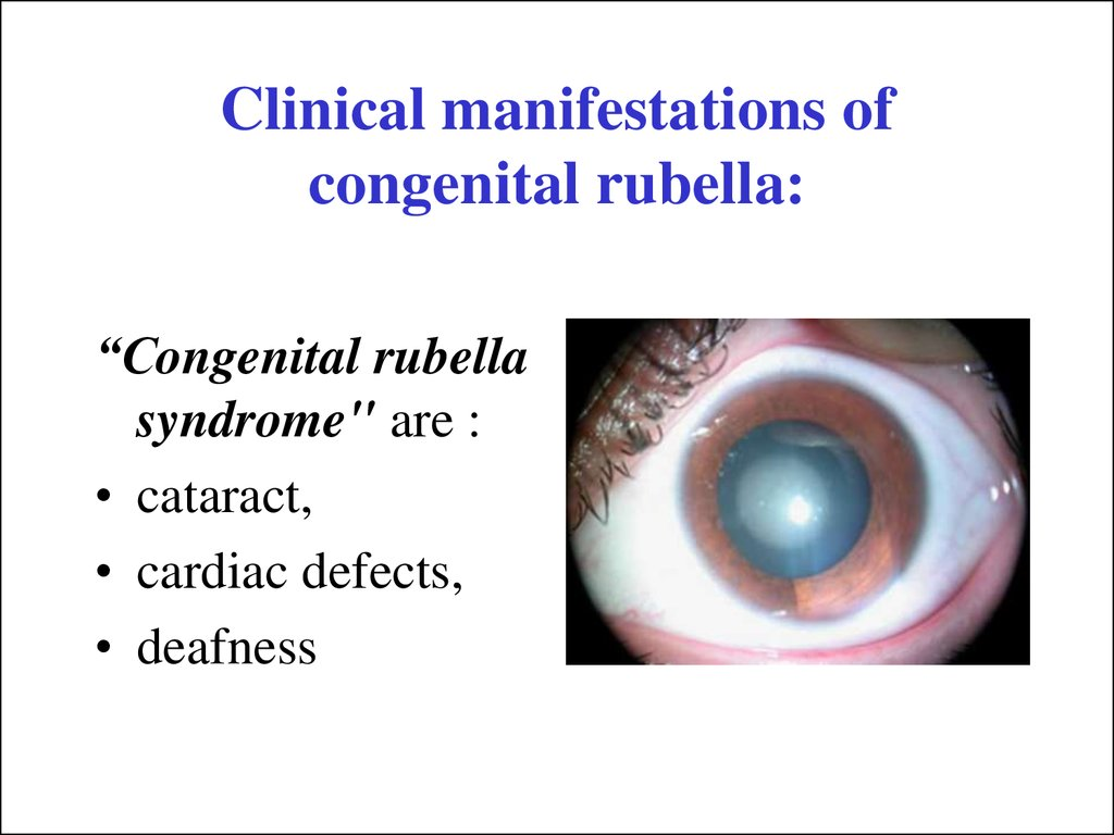 Clinical manifestations of congenital rubella: