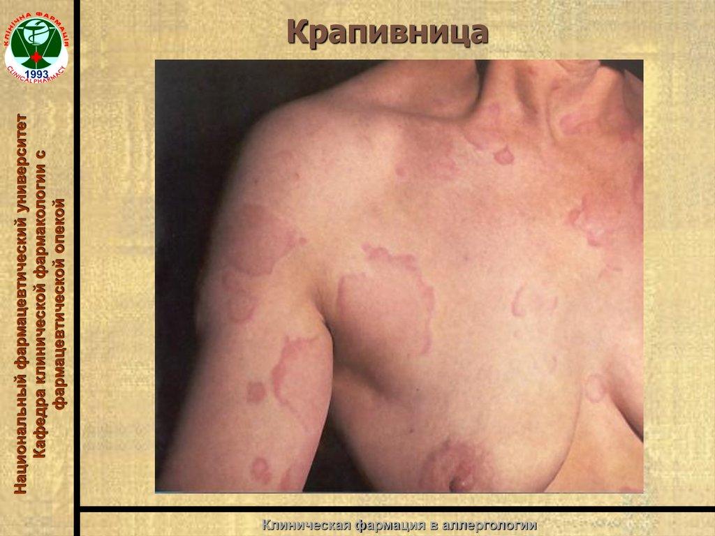 воз профилактика аллергии