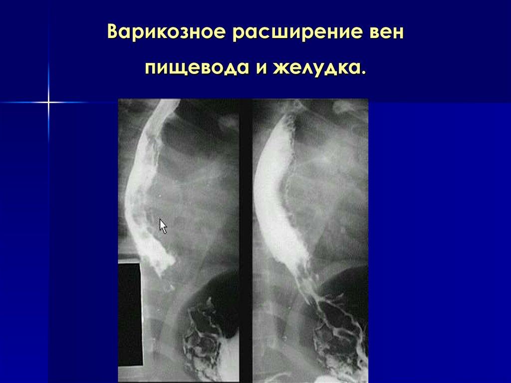 Варикоз вен желудка лечение