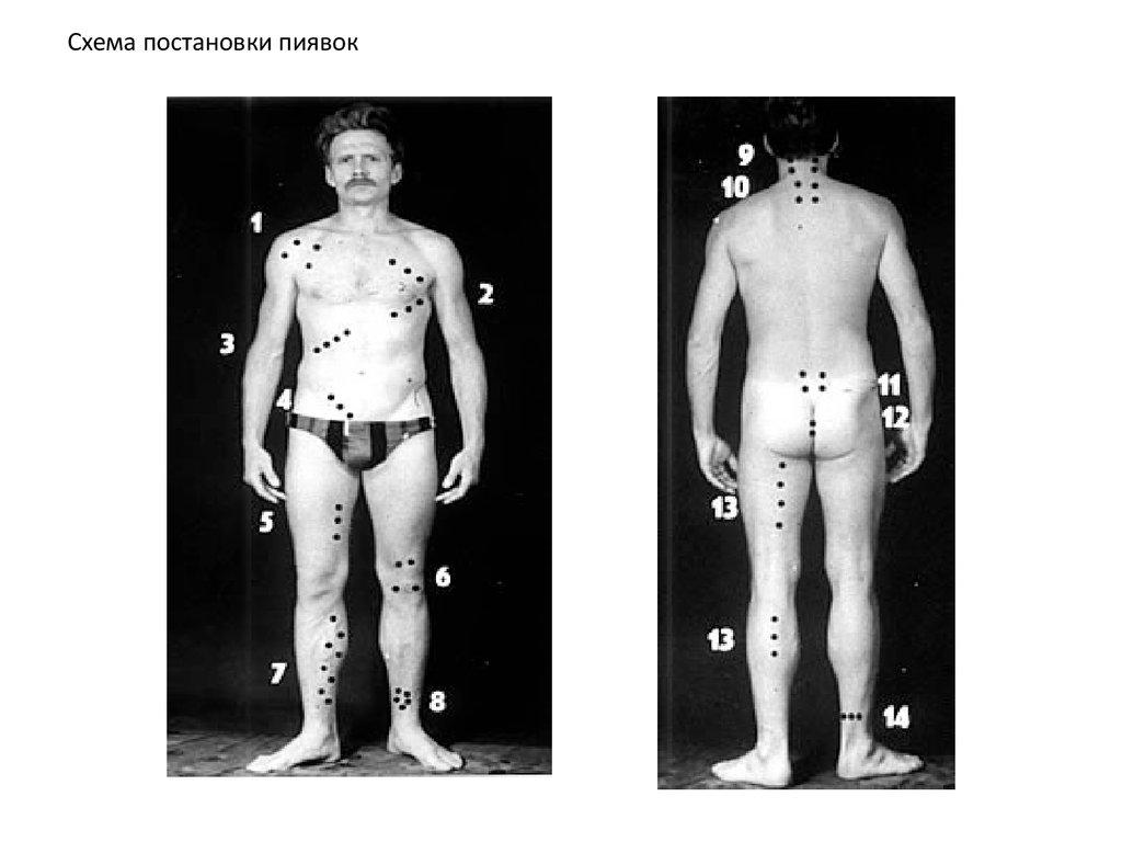 Гирудотерапия при поликистозе