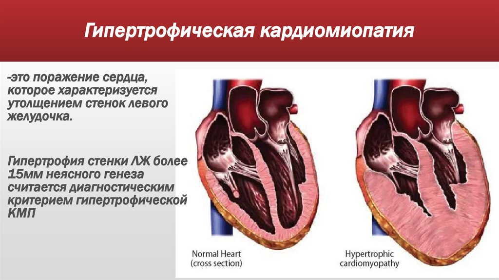 cardiomyopathy Cardiomyopathy is a heart problem caused by a damaged heart muscle there are different types of cardiomyopathy, which have different causes and affect different groups of people.