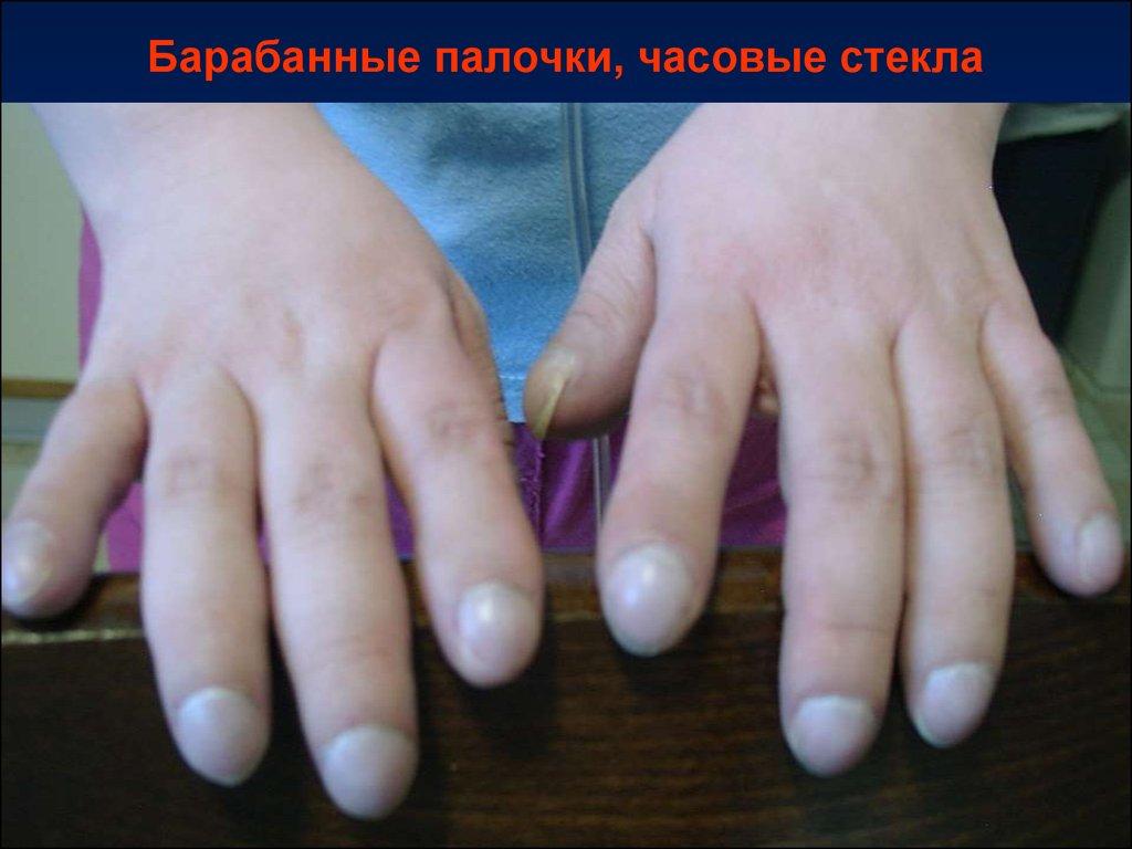 гастроинтестинальная пищевая аллергия