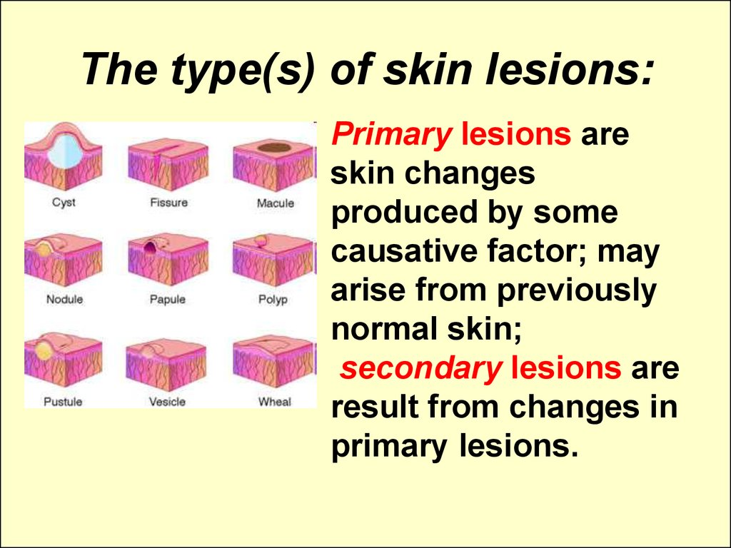 The type(s) of skin lesions: