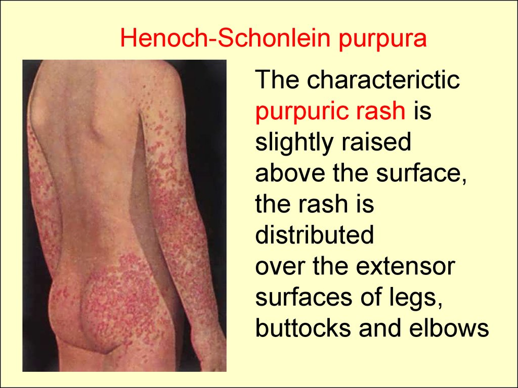 Petechiae On Legs