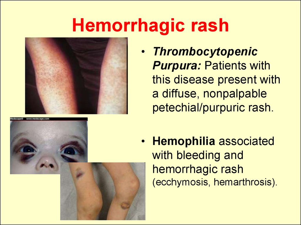 Hemorrhagic rash