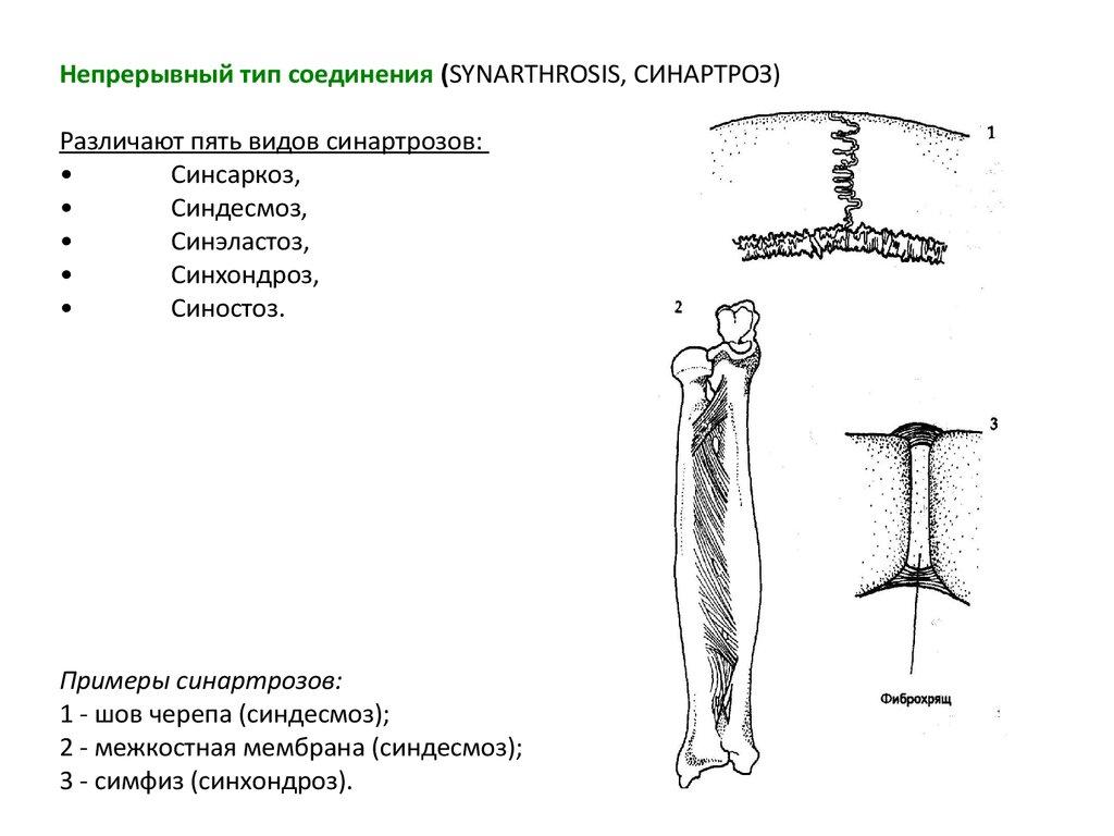 Сустав синартроз нижний тагил протезирование суставов